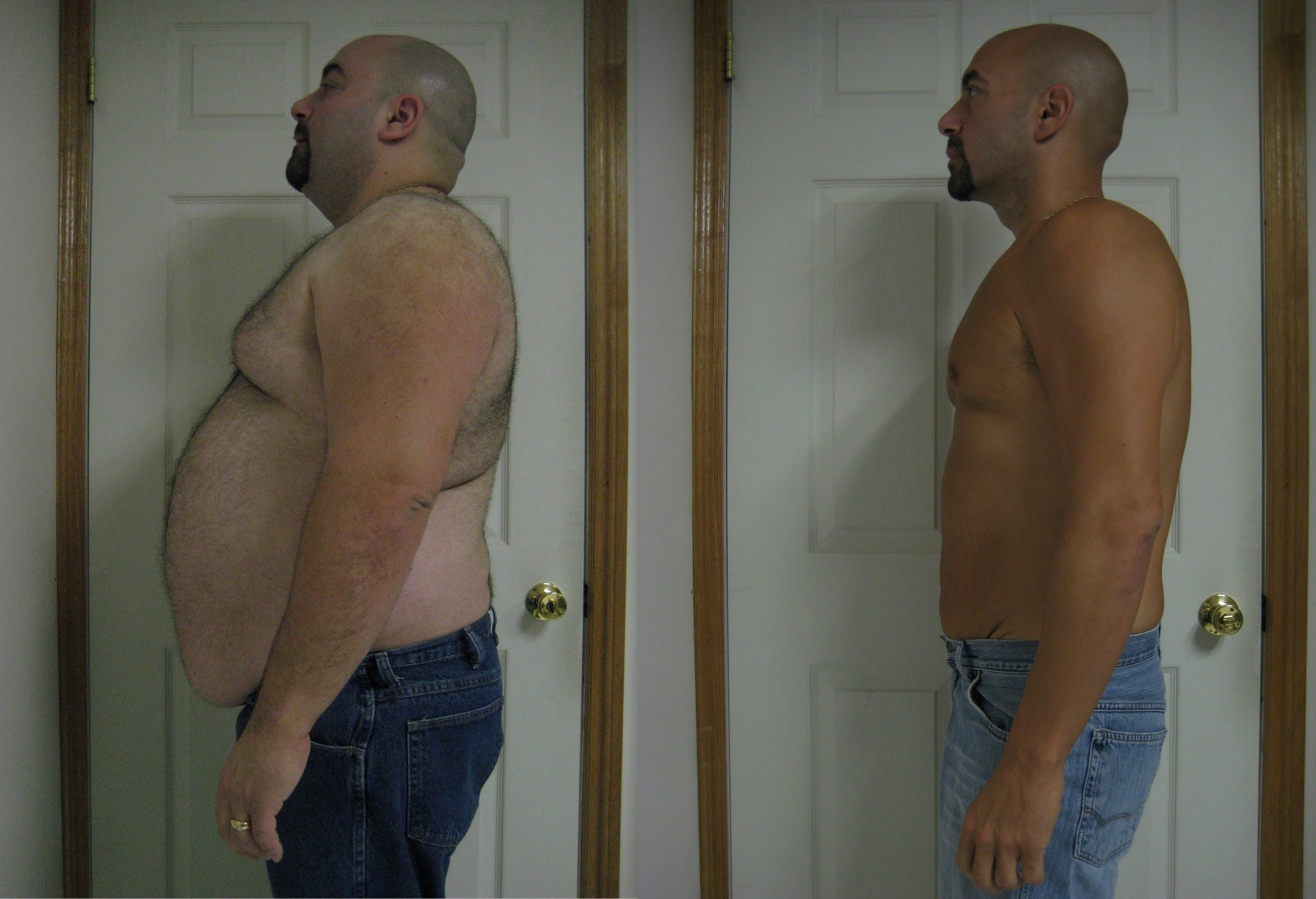 Gastric Bypass Surgery Before And After 172lbs Weightloss Home